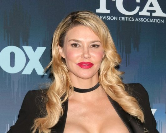 Brandi Glanville second-degree burns